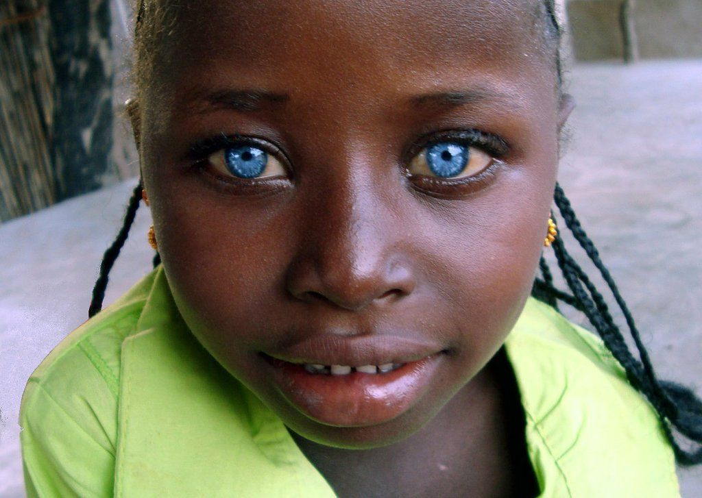Baby Born With Red Hair Will It Change  Stunning blue eyes A girl with Waardenburg Syndrome