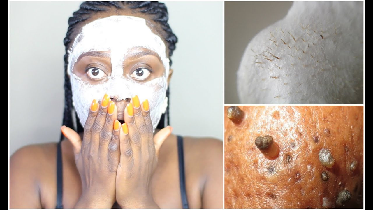 DIY Peel Off Face Mask With Egg  BLACKHEAD REMOVAL PEEL OFF MASK USING EGG GET A FLAWLESS